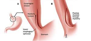Laparoscopic myotomy removes the blockage